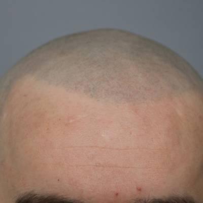 Mikropigmentacja głowy