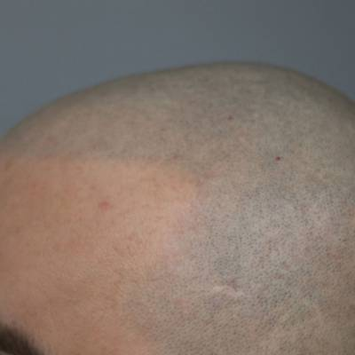 Efekt mikropigmentacji