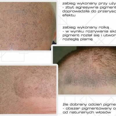 Efekty mikropigmentacji skóry głowy