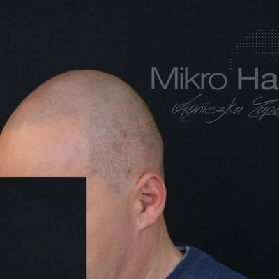 mikropigmentacja skóry głowy efekt ogolonej głowy