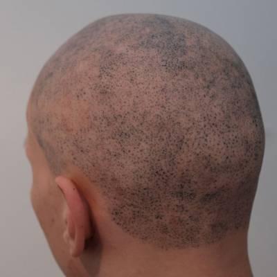 źle wykonana mikropigmentacja skóry głowy