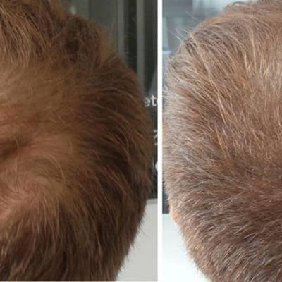 Zagęszczanie włosów mikropigmentacja skóry głowy efekty
